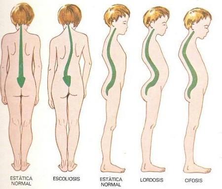 desaroollo columna vertebral niño correcto y desviado