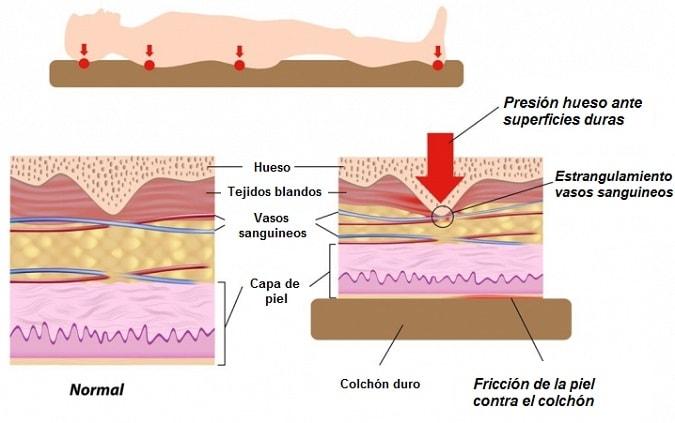 formacion escaras en piel